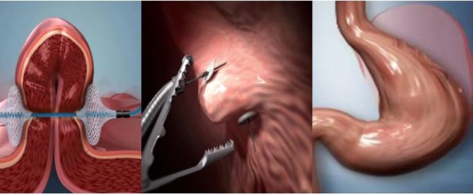 Fases del procedimiento endoscópico POSE