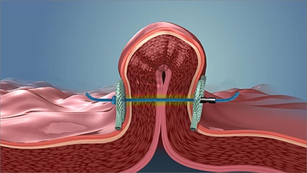 Pliegue del procedimiento POSE para la reducción del estómago
