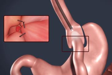 Procedimiento endoscópico RETO para el tratamiento de la obesidad