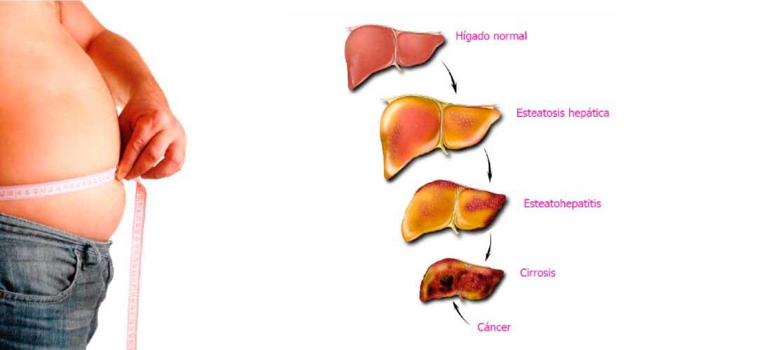 Hígado Graso Y Otras Patologías