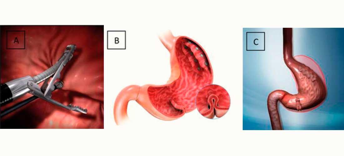 Método POSE Hormonal. Pasos